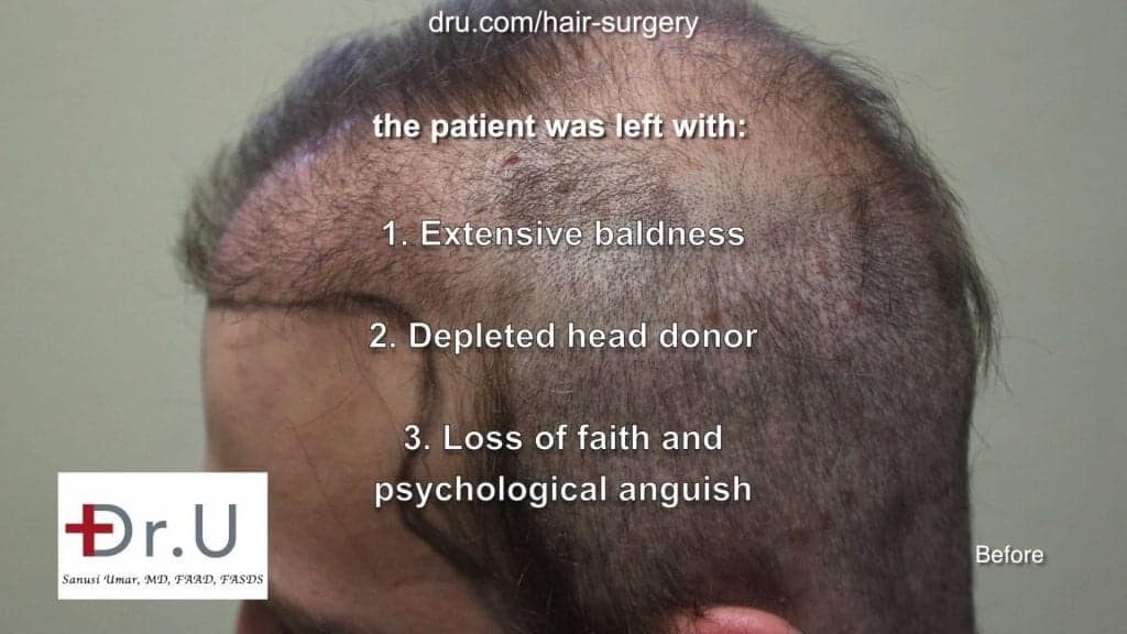 Repairing donor hair depleted patient using DrGraft Los Angeles: hair transplant not enough donor hair