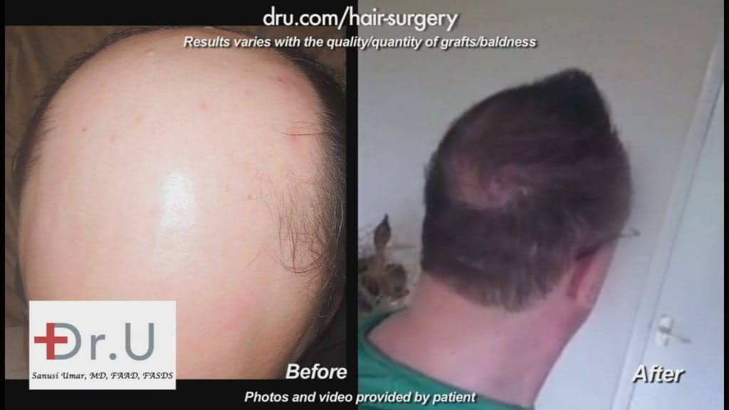 Patient received full Norwood 7 hair restoration using 10500 DrUGrafts