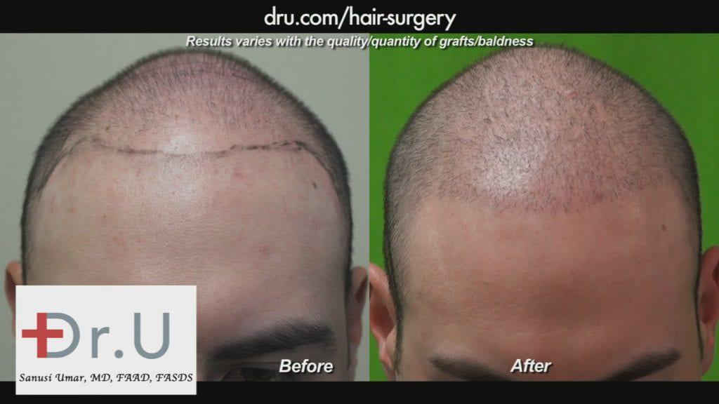 Hair Restoration Before and After in Young Patient