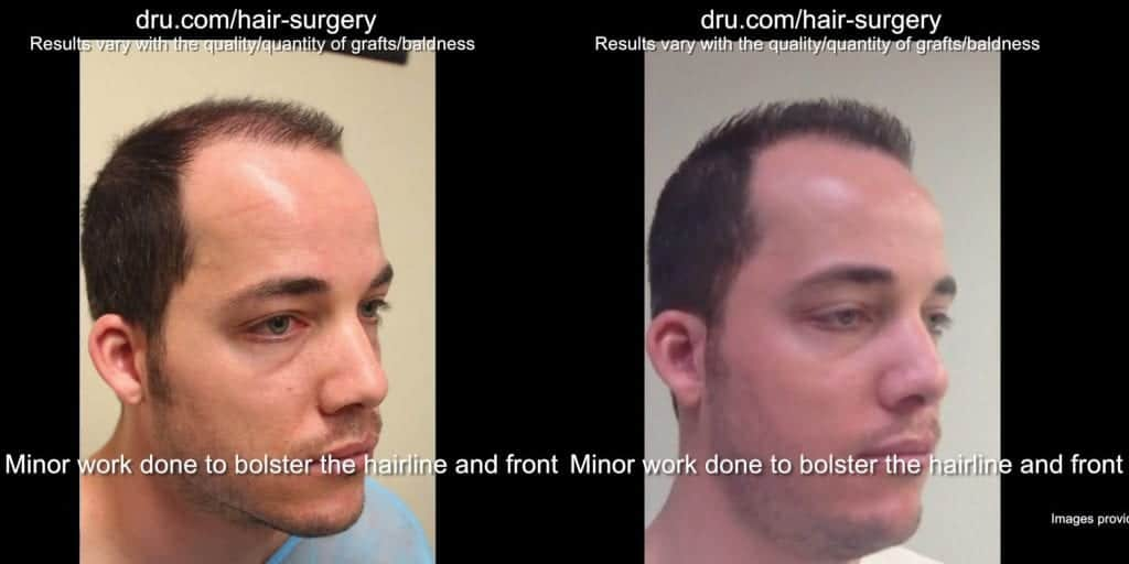 Low budget hair restoration before and after