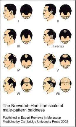 The Norwood-Hamilton Scale of Male-Pattern Baldness