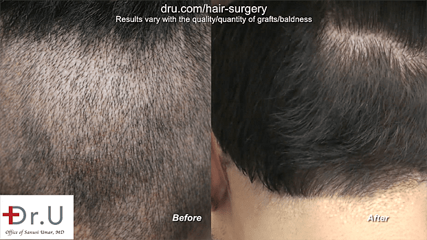 Full Hair Restoration: Results of the Dr.UGraft
