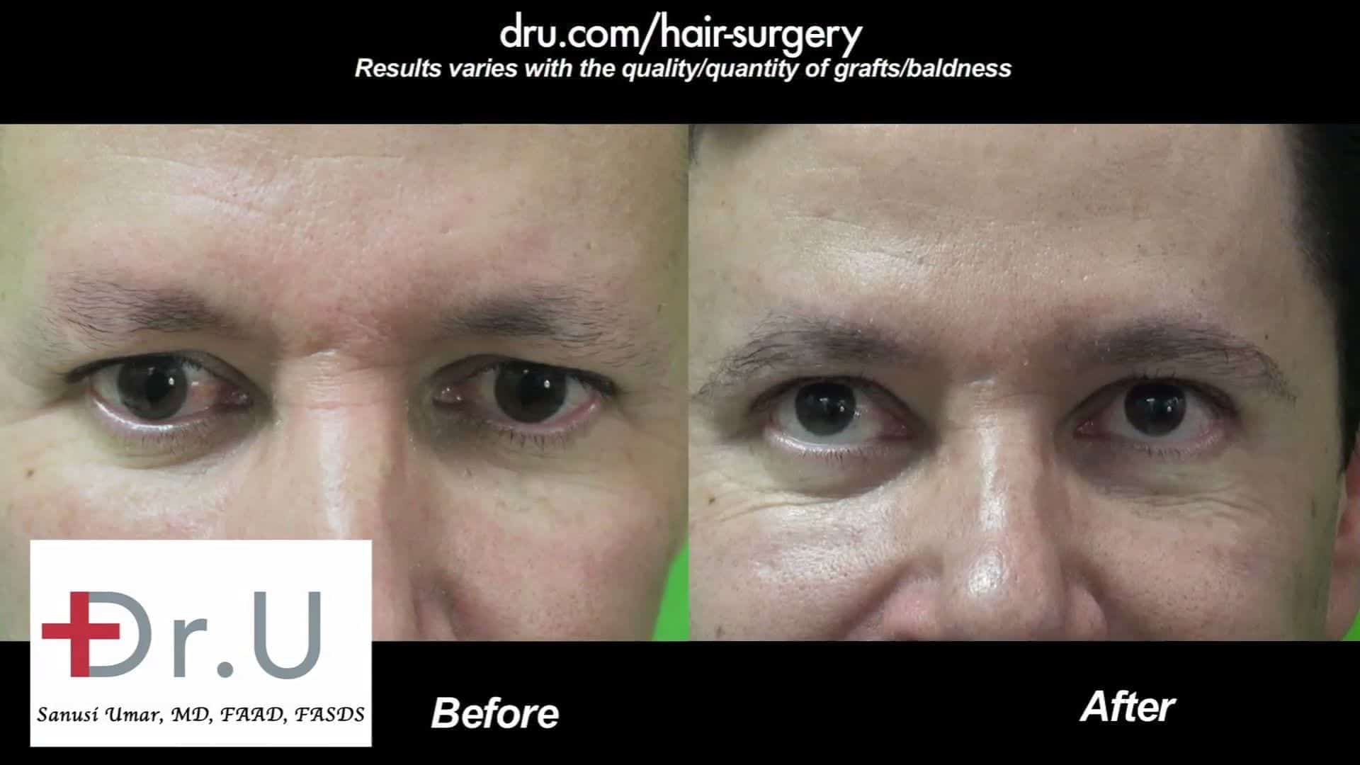Eyebrow transplantation for men can greatly improve the way the eyes are framed as shown in these before and after photos