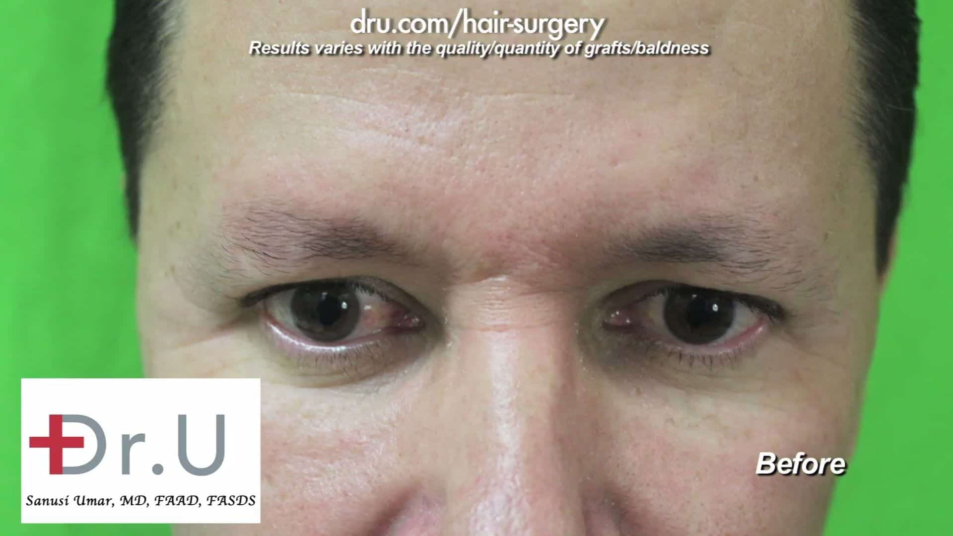 This patient feels his sparse eyebrows are unflattering in appearance and do not frame his face properly. He is, therefore, choosing to undergo an FUE eyebrow transplant for men.