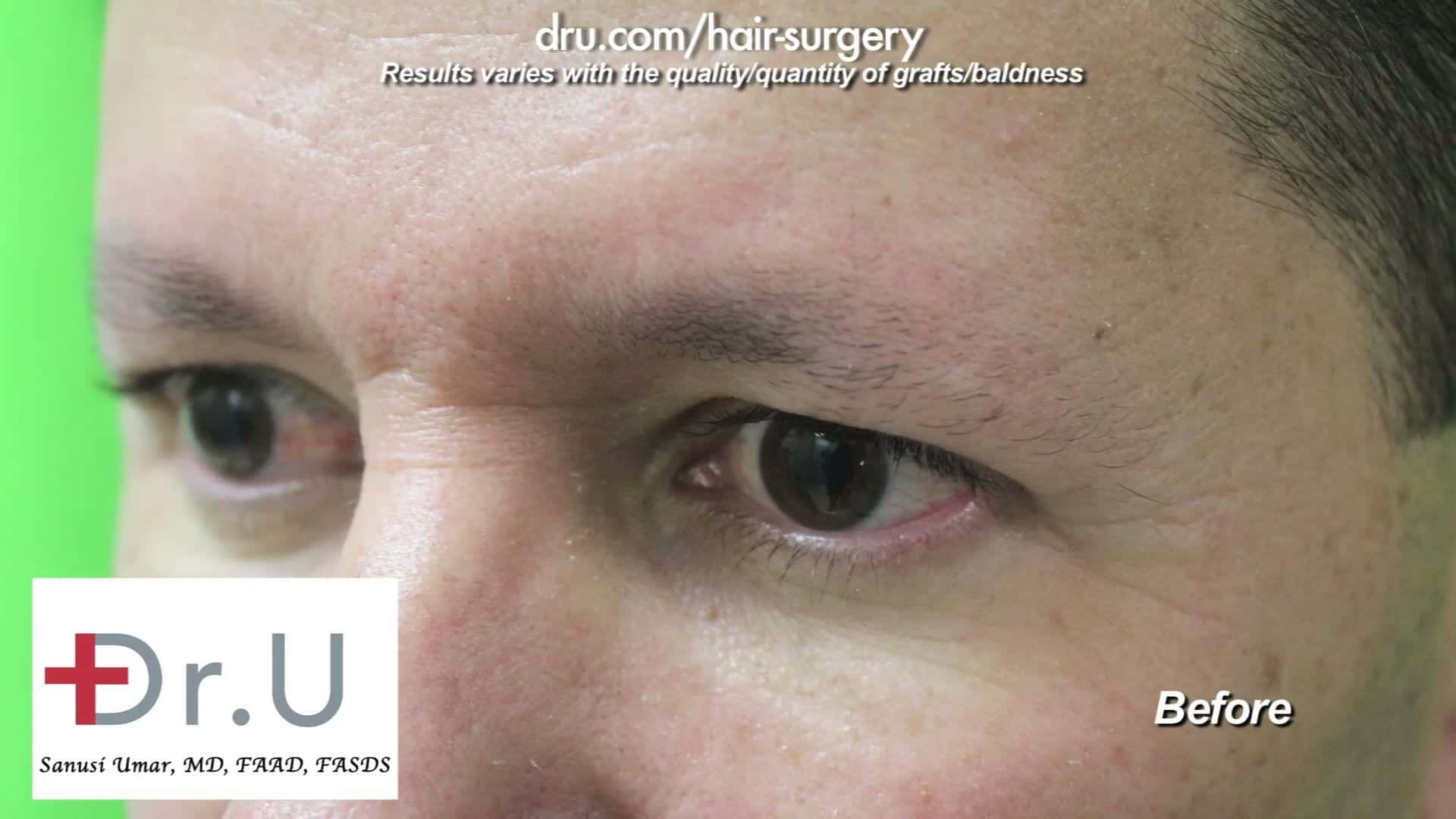 300 leg hair grafts will be transplanted for this male eyebrow restoration surgery to restore a fuller eyebrow look.
