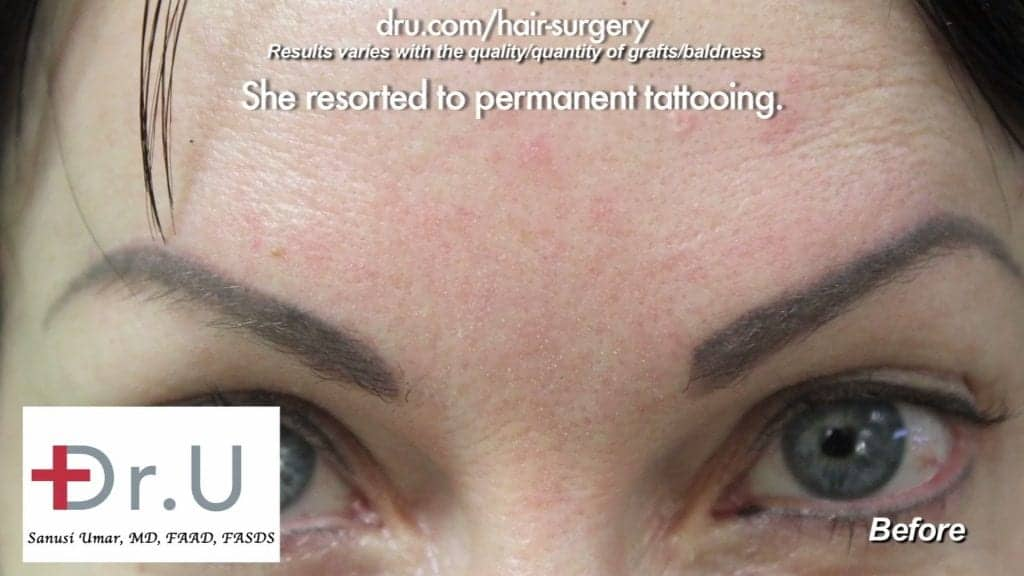 Eyebrow Tattooing did little to give the patient a natural look. It looked fake and fades over time
