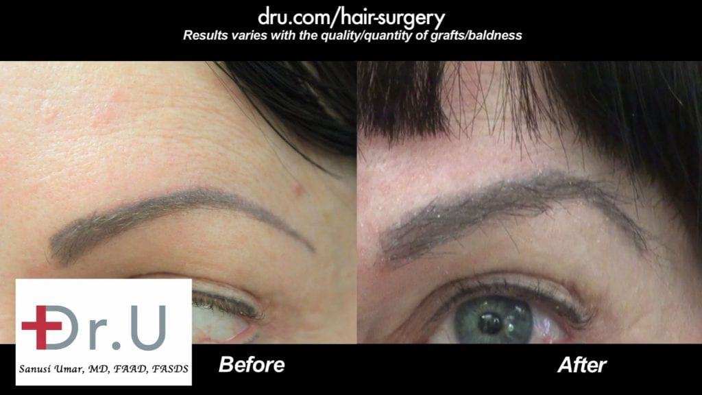 Which to have, Dr UGraft eyebrow hair restoration or Eyebrow tattoo ? The results shown in this picture should favor Transplantation