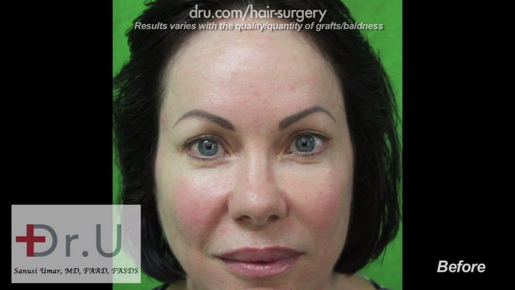 Eyebrow Tattoos Before Eyebrow Hair Transplant Photos: