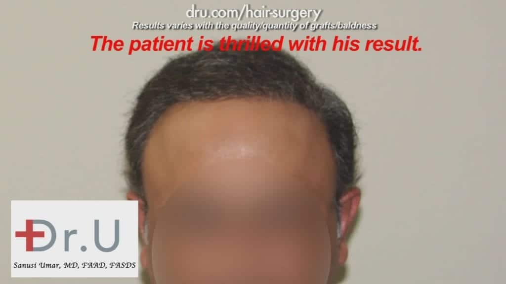 The Severe Hair Loss Restoration Cost was definitely worth it for this NW 7 patient