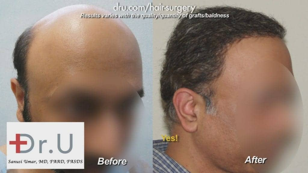 Severe hair loss treatment using the Dr.UGraft BHT system