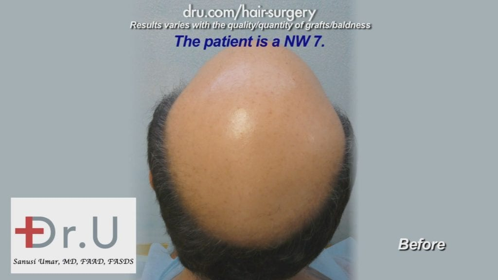 Severe Baldness Corrected Using 12000 DrUGrafts from Head and Beard