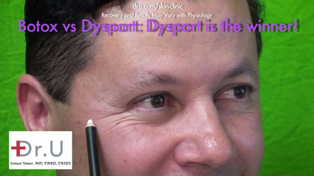 Crows feet - Positive Patient Results Hours After Dysport Injections