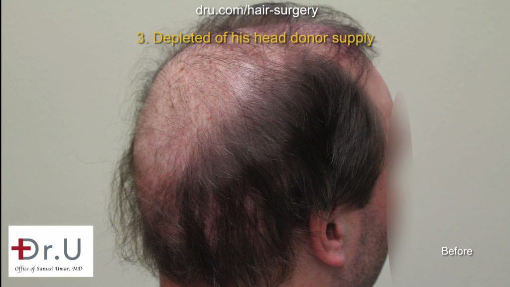 Botched and Donor Depleted Severely Bald Patient Repaired: Before hair transplant repair with Dr. Umar