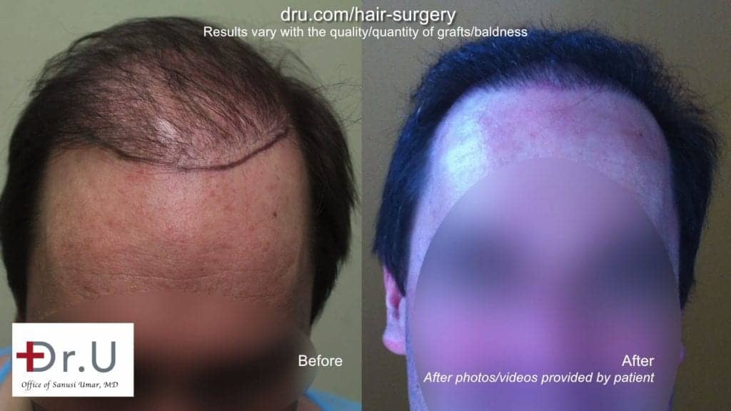 DrUGraft BHT FUE Hair Repair Donor Depleted Norwood 6 Patient