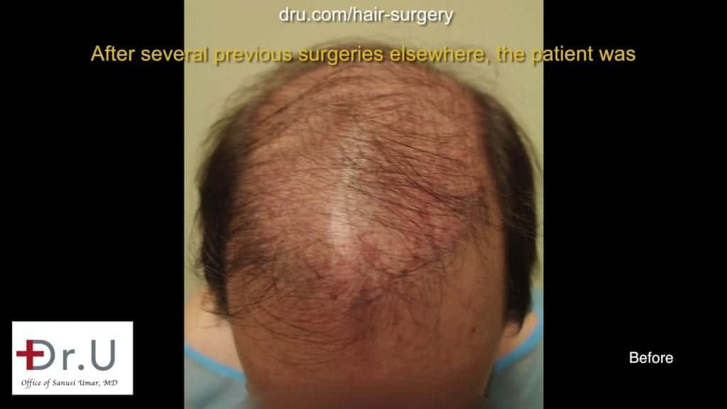 Botched and Donor Depleted Severely Bald Patient Repaired: Before undergoing the Dr.UGraft, this patient had visible scarring and high level baldness.