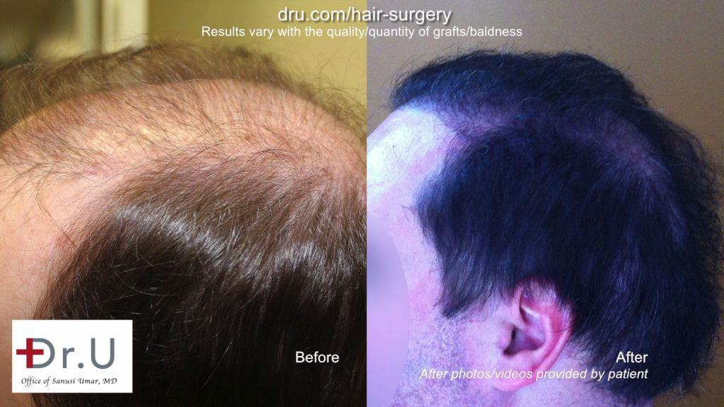 Botched and donor depleted severely bald patient repaired by Dr.UGraft hair surgery