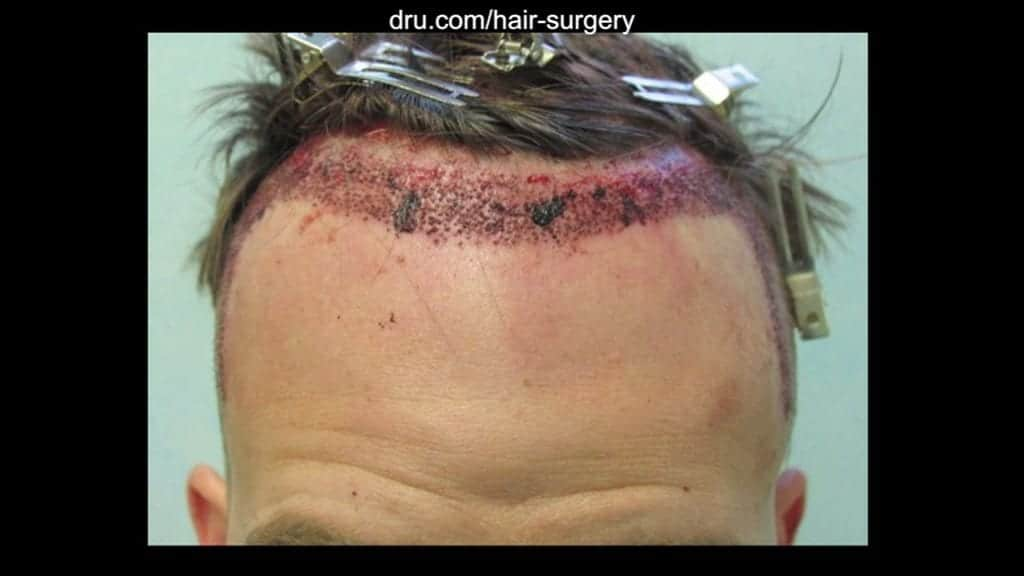 The patient's scalp immediately following the Dr.UGraft procedure.