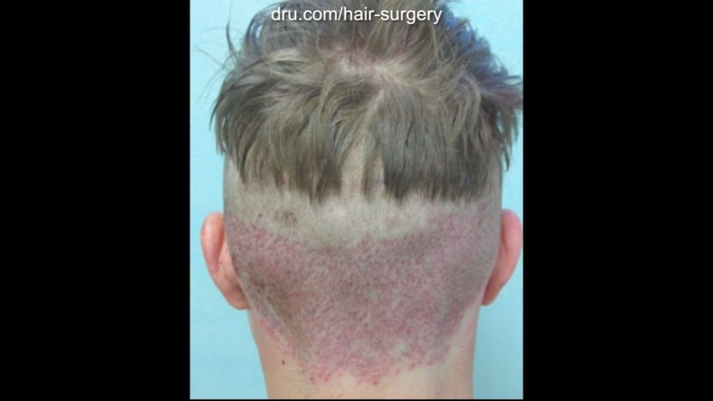 This image shows his nape immediately after surgery. The wounds from the Dr.UGraft procedure usually heal in a month or less.