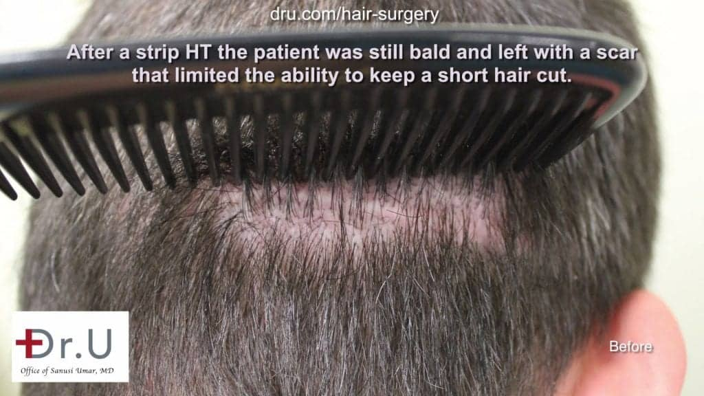 Scar on the back of patient's head, prior to low budget hair restoration and scar repair