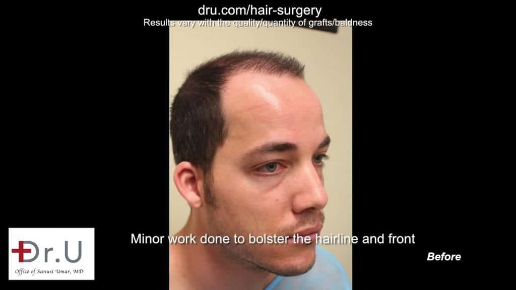 Hair loss prior to Dr UGraft FUE Hair Transplant Using 1600 Head Grafts For Strip Scar Restoration