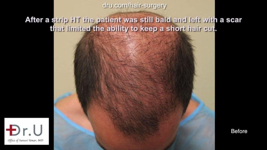 Dr UGraft FUE Hair Transplant Using 1600 Head Grafts For Subtle Strip Scar Restoration - Top View, Before Procedure