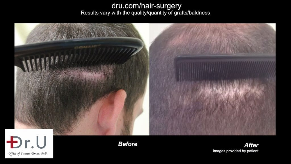 Scar from a previous strip surgery concealed by the DrUGraft subtle hair transplant