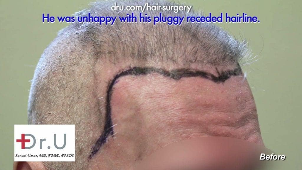 Scalp Reduction and Progressive Hair Loss Before and After Repair: Before Dr.UGraft advanced FUE hair surgery this patient's hair had a pluggy, unnatural appearance.