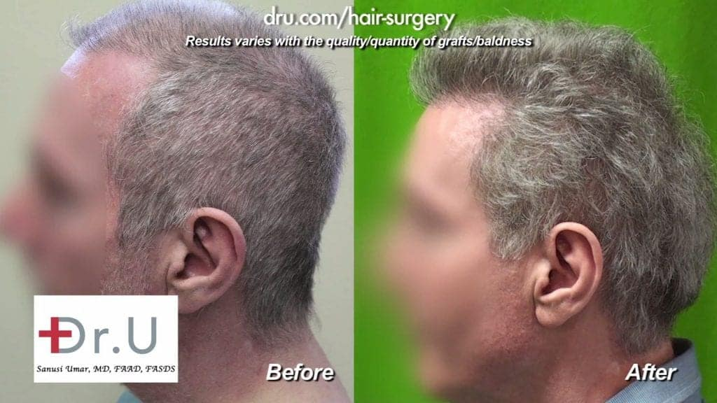 Profile view: Before and After Scalp Reduction and Crown Deformity Repair