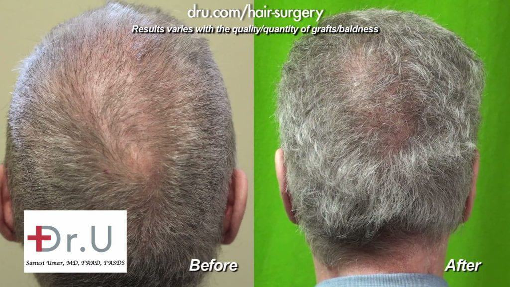 Crown view: Scalp Reduction and Progressive Hair Loss Repair Before and After