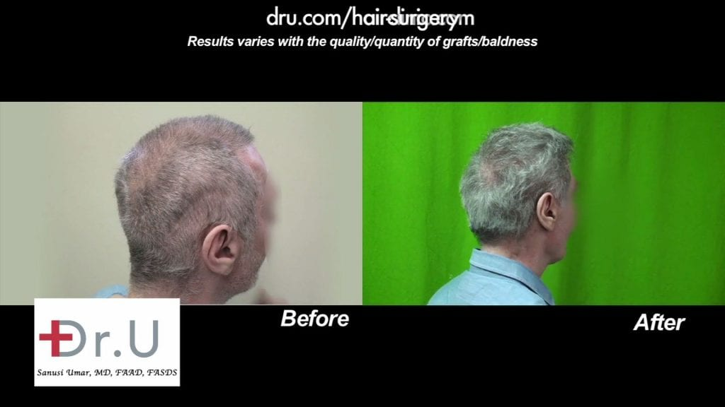 Scalp reduction: before and after repair