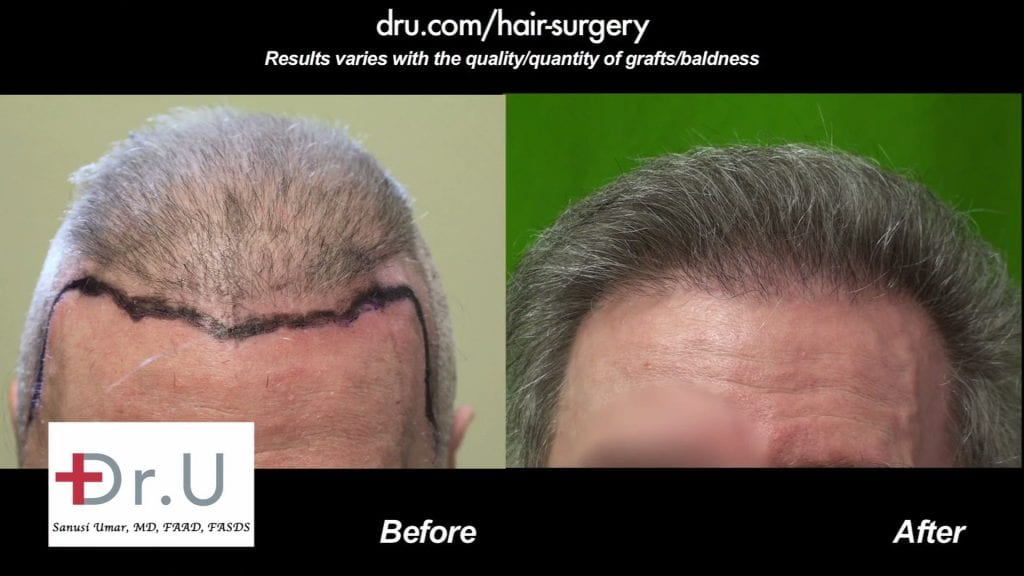 Before and After the Advanced FUE Hair Repair Surgery
