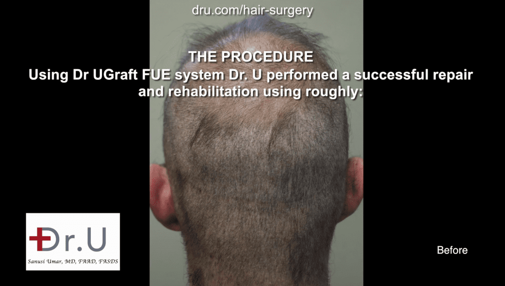 Before Dr.UGraft body hair transplant repair, the patient had a strip scar, depleted donor from strip surgery and multiple FUE and still very bald
