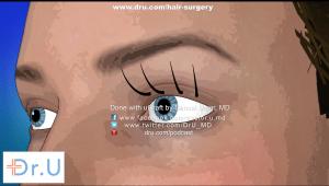 VeeLashe eyelash transplant