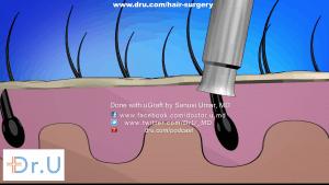Dr. UGraft™