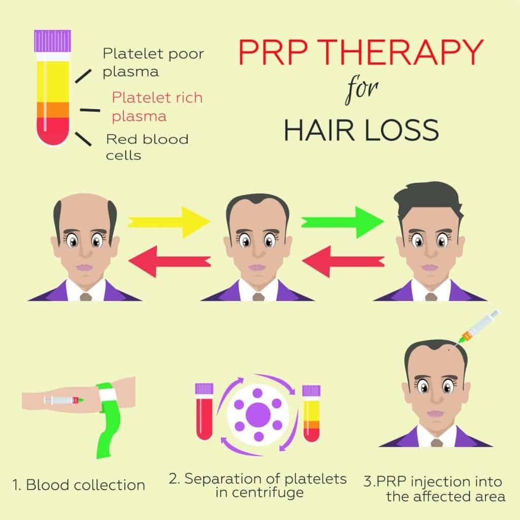 prp therapy for hair loss infographic