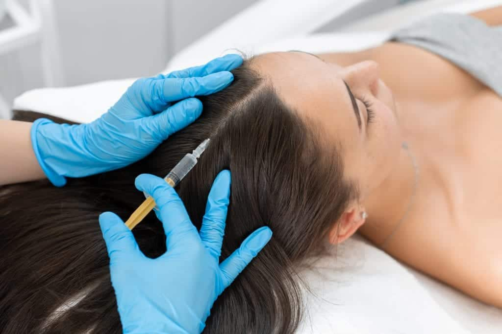 Stromal Vascular Fraction SVF is delivered to target areas like the scalp by direct injections