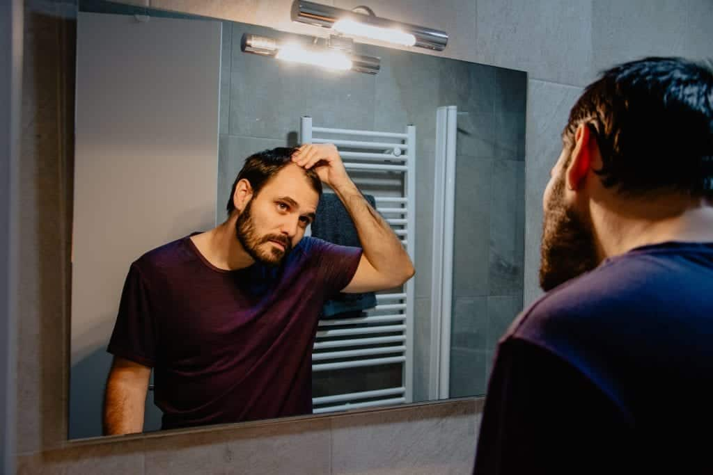Hair loss can cause insecurities