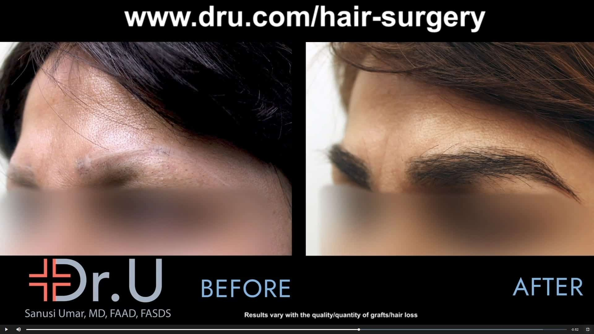 After a pubic hair to eyebrow transplant, this Los Angeles patient was able to restore a natural looking eyebrow that no longer looked scared or had eyebrow discoloration.*