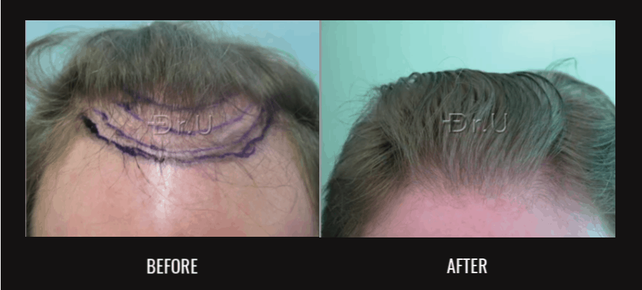 Dr.U's Nape Hair Transplantation Helps Patient Stay at Norwood 3