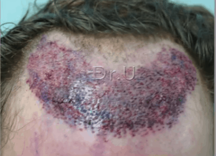Hair Transplant Recipient Area Following Nape Hair Insertions