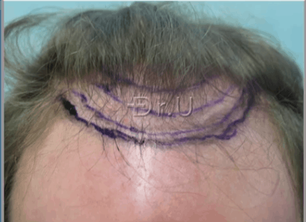 Patient wants to improve his appearance by reducing the margin of hair loss only by a small margin.