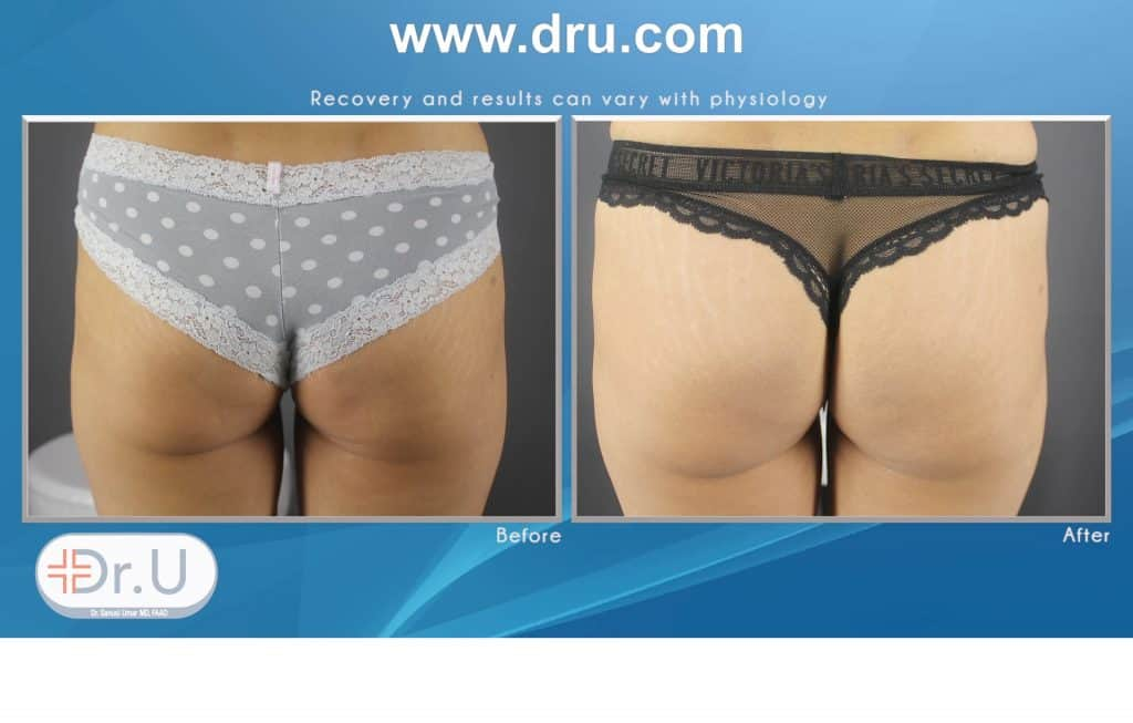 non surgical butt lifting result using HIFEM® (High-Intensity Focused Electromagnetic Energy), Emsculpt