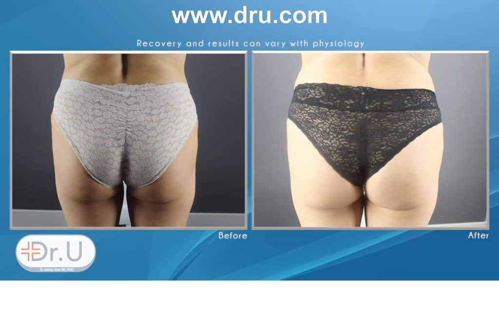 How Does Emsculpt Sculpt Abdomens and Buttocks Without Exercise ?