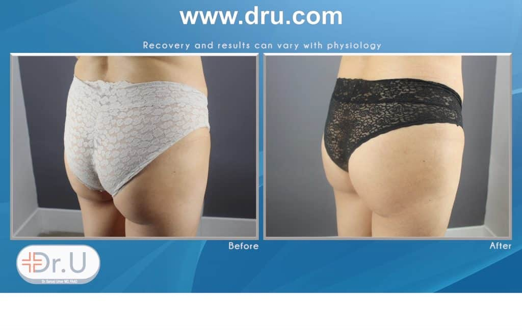 How Does Emsculpt Sculpt Buttocks Without Exercise ?