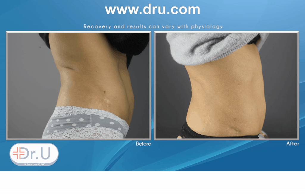 How Does Emsculpt Sculpt Abdomen Without Exercise ?
