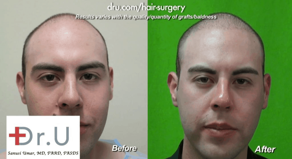 Hair Transplant Growth For Young Patient