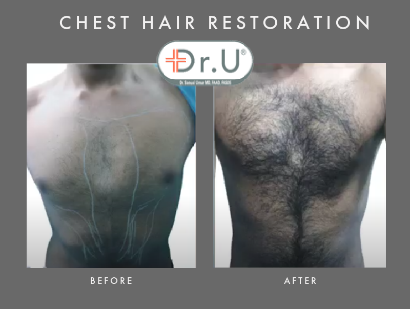 Head to Chest Hair Transplant by Dr.UGraft FUE For Happy Beverley Hills Patient