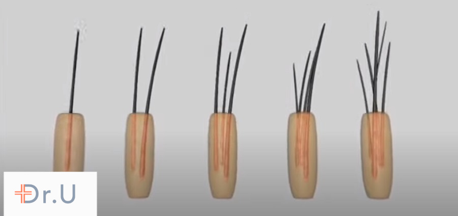 Follicular unit grafts consist of multiple hair follicles wrapped in a bundle. In partial FUE, they are dissected to create two separate hair transplant graft components