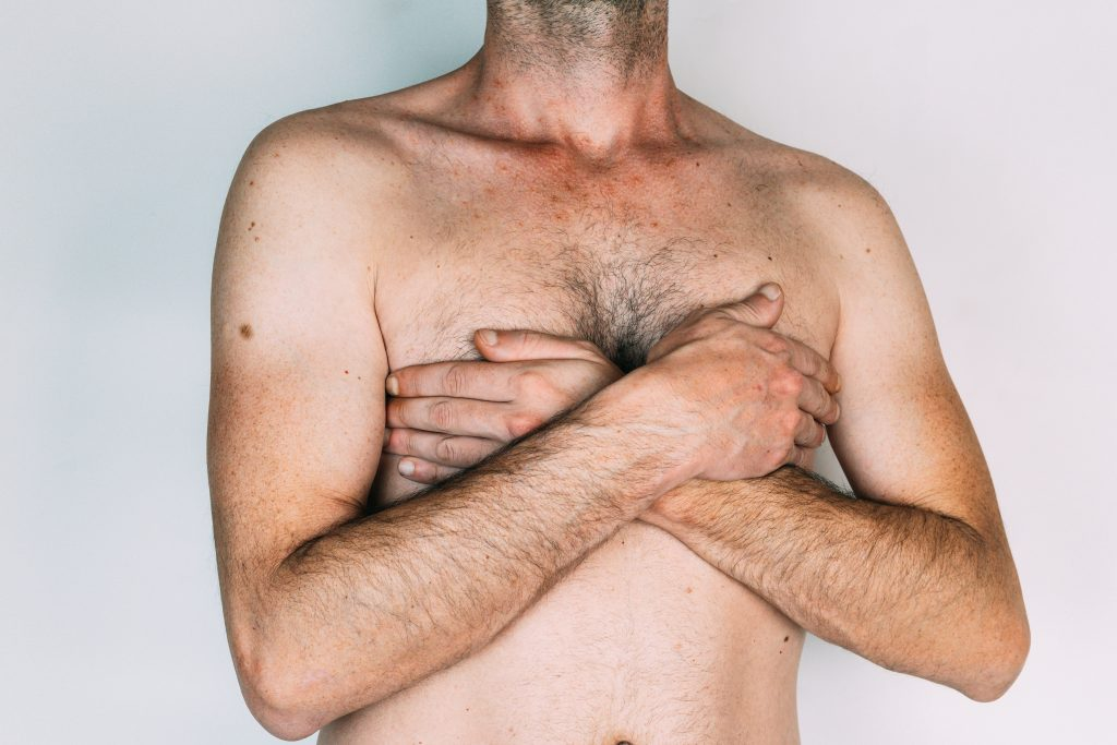Gynecomastia is quite common and leaves men are embarrassed by their enlarged breast
