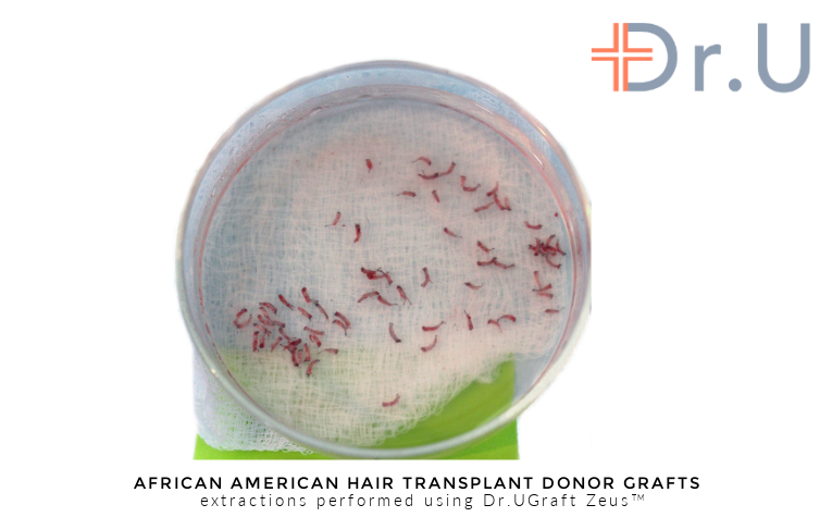 Hair transplant donor grafts harvested using the Intelligent Punch unit of the Dr.UGraft Zeus hair restoration system, invented by Dr.U